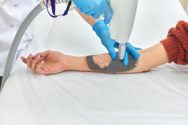 tattoo problemen